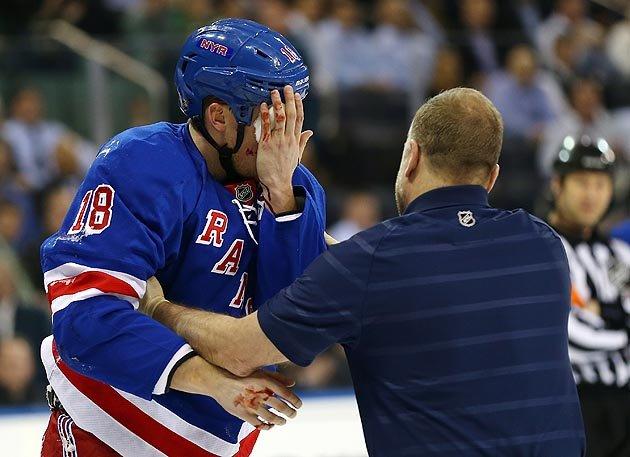 NHL:有关是否强制佩戴面罩的讨论升温