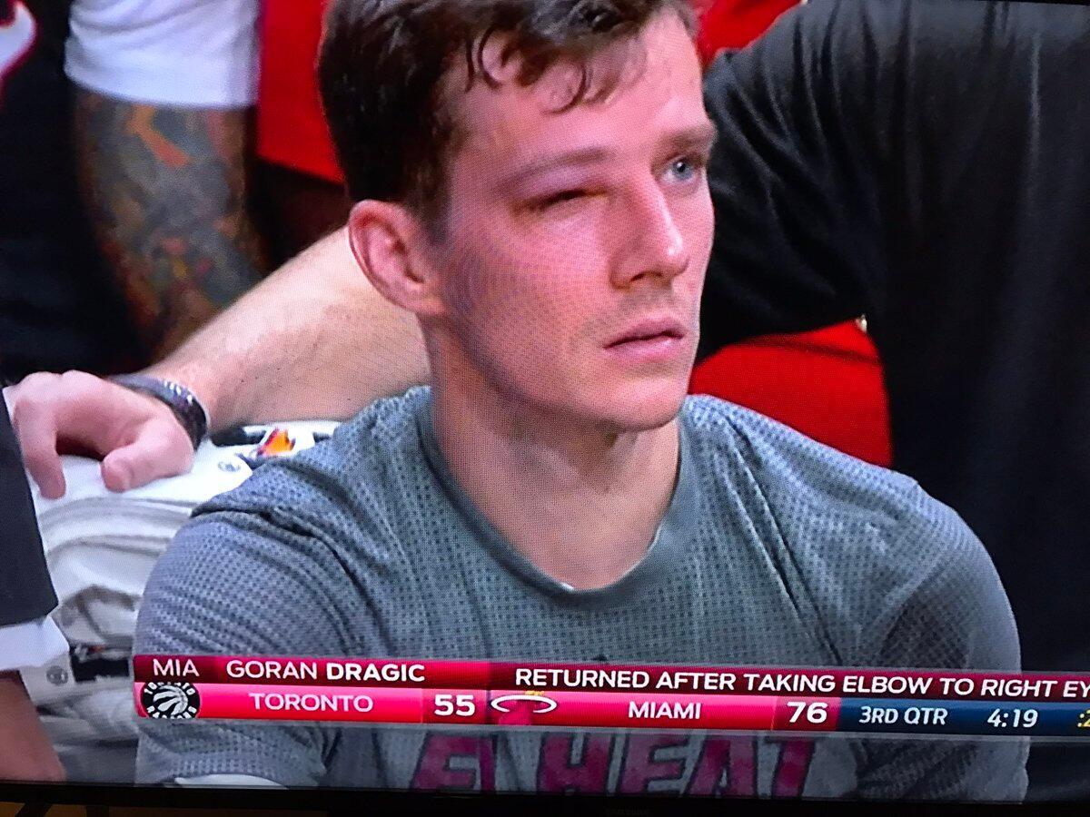 德拉季奇的眼睛被肘子打到,不会继续上场比赛
