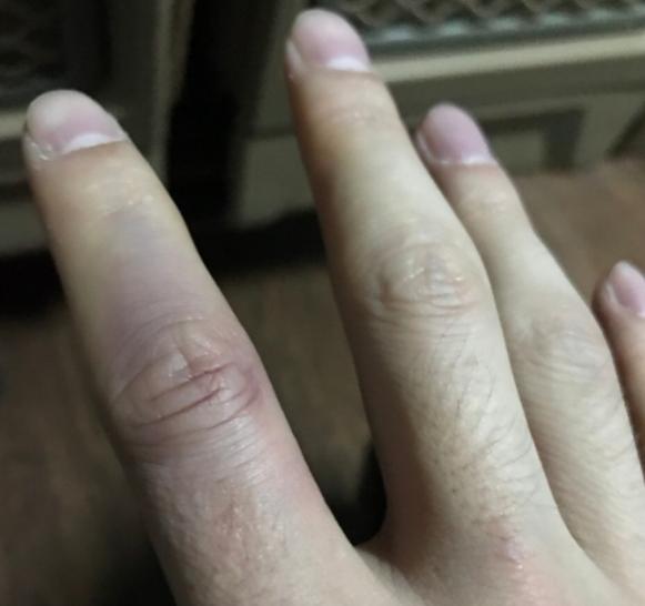 曾令旭晒手指受伤照:遗憾!尽力了