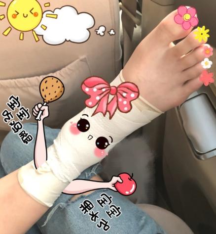 睢冉爱妻晒睢冉受伤脚踝:大姨伤愈仍是一条好汉