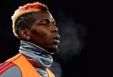 前球员:曼联没有很多世界级球员,博格巴有潜力