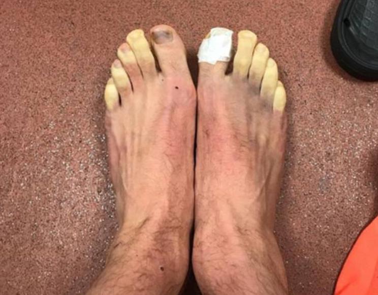 如何解冻脚趾?拉拉纳展示脚伤照片