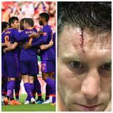 米尔纳晒出缝针后的伤口:1球1助、5比0、15针!