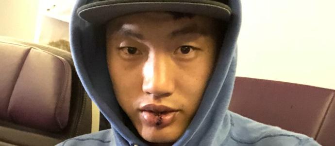 翟晓川调侃撞伤:我的嘴是不是特点又突出了很多