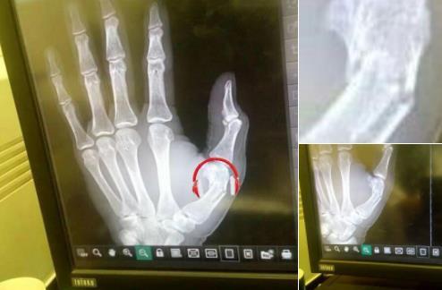 回声报:统计数据表明手指骨折无碍马内出战哈镇