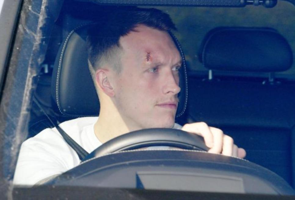 对阵西汉姆联时头部遭到碰撞,琼斯眉骨处留下巨大伤疤